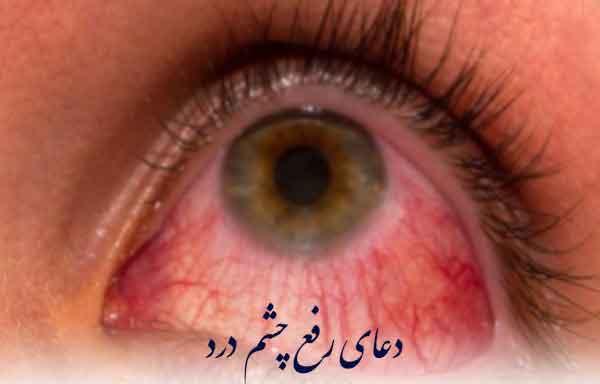 دعای درد چشم - دعای تضمینی و سریع الاجابه رفع مرض چشم